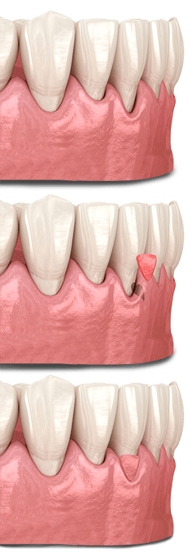 Gum Graft Surgery In Mexico